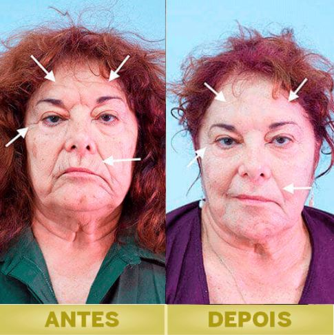 hialucaps skin antes e depois